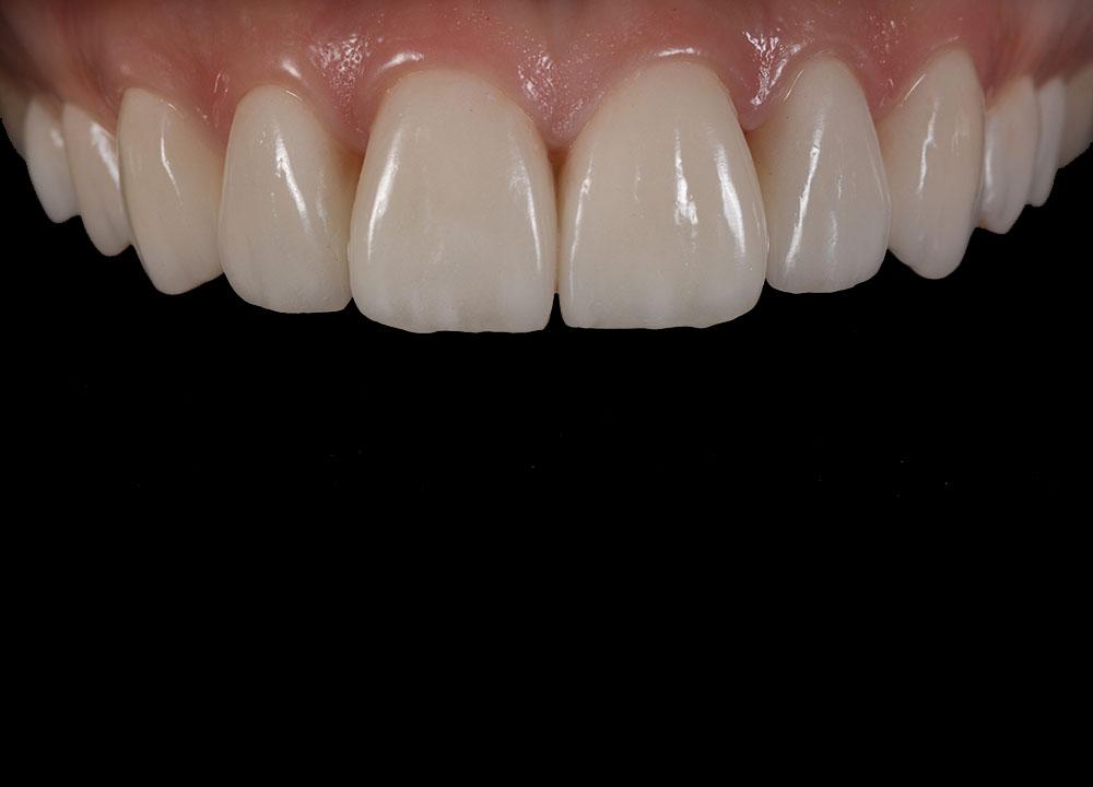 зубы перед винирами