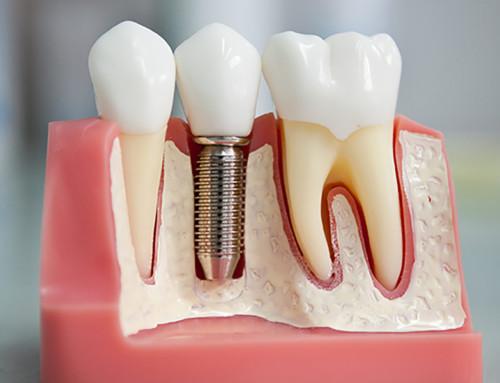 В Китае имплантировали зубы без участия врачей