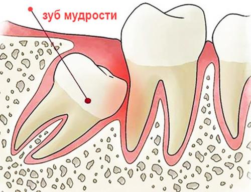 Зубы мудрости: удалить или сохранить?