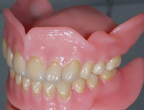 Зубные протезы предотвратят развитие грибковой инфекции
