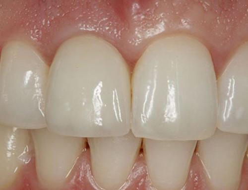 Восстановление зубной эмали по технологии российских химиков