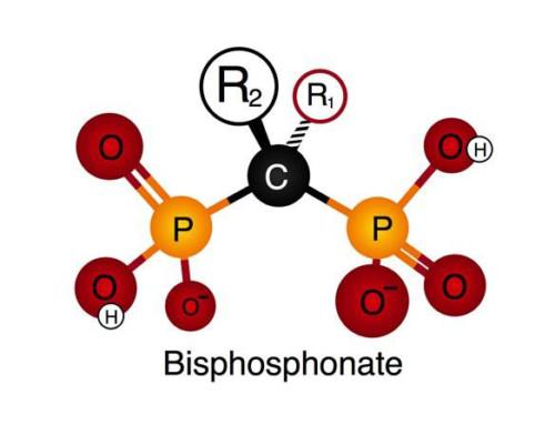 Влияние бисфосфонатов на приживаемость дентальных имплантов